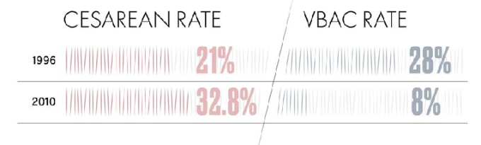 momerewego-rate-csection